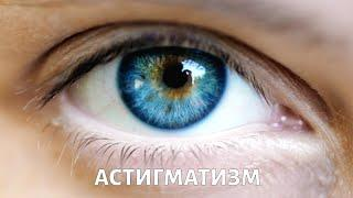 Астигматизм. PROЗРЕНИЕ